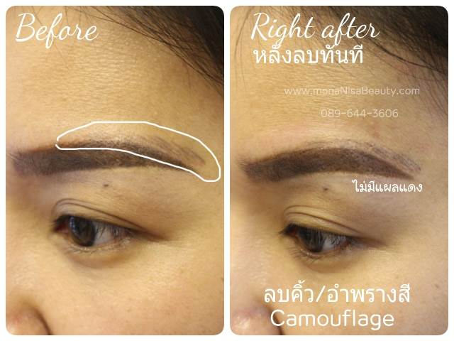View only photos of correction and removal of 3D eyebrow tattoo ...